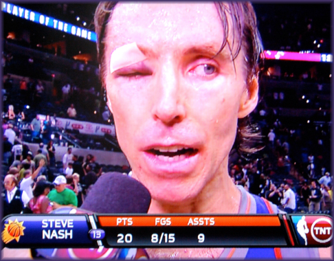 Steve-Nash-sweeps-Spurs-with-one-eyeball